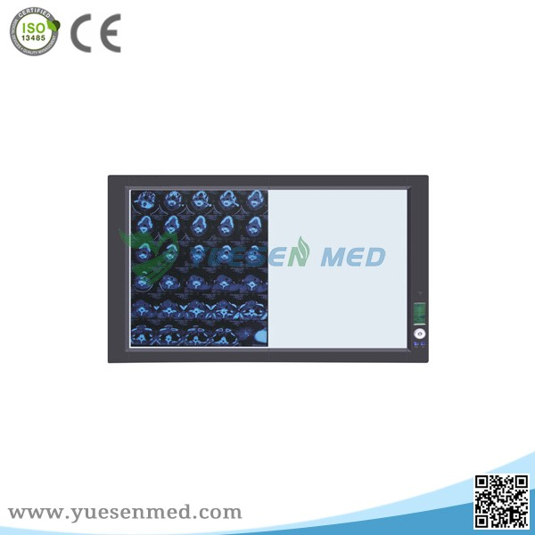 medical x ray room potable double led x-ray Radiography film viewer