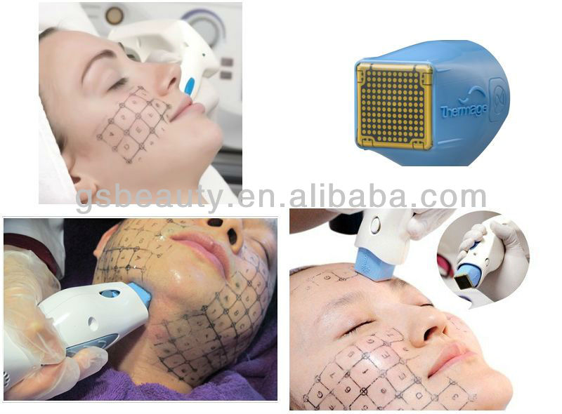 Thermage CPT skin rejuvenation beauty machine