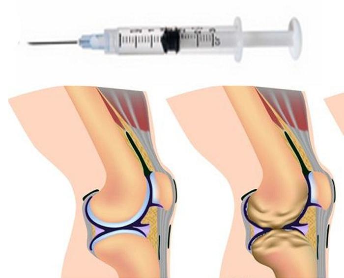 Лечение коленного сустава гиалуроновой кислотой