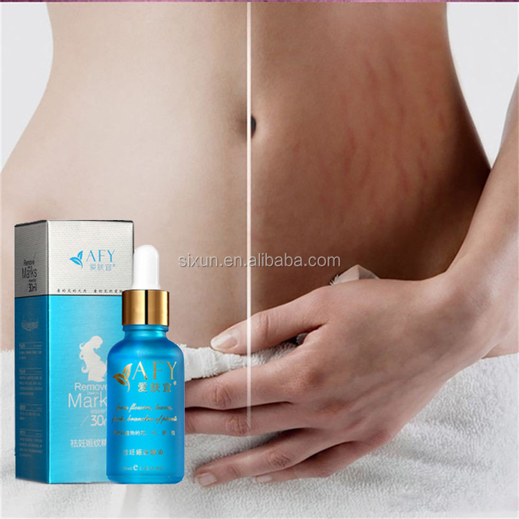Removal Scar Stretch Marks Cream Treatment Face Care Whitening Stretch Marks Removal Cream