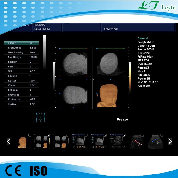 LTB06 CE 12' high-resolution LED portable 4D color doppler ultrasound scanner