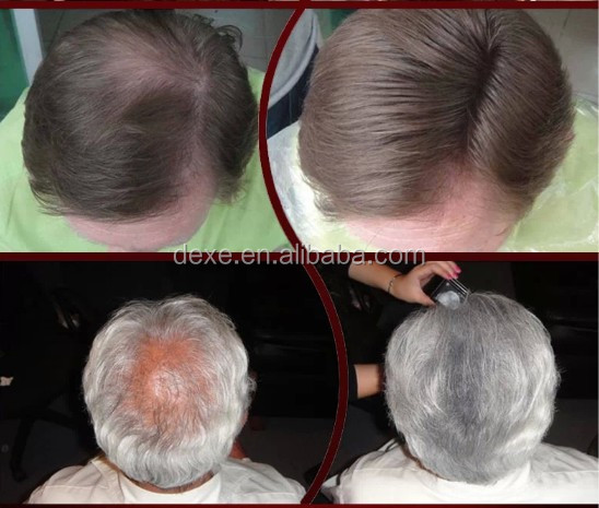 Hair building fibers make thin hair thicker and fuller