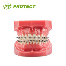 Dental roth high/middle and low torque orthodontic self ligating braces