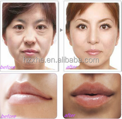 High quality 100% pure Sodium Hyaluron injectable dermal filler to remove wrinkes Nasolabial Folds