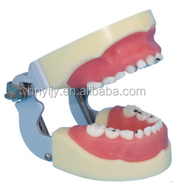 Tooth model children model shows children's dental caries carious pathology