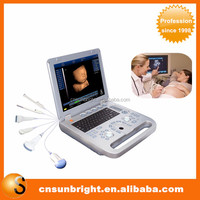 High clear image system ultrasound portable 4d picture