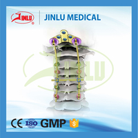 CE approved factory Spine implants spinal rod posterior cervical