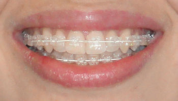 Orthodontic self ligating crystal bracket