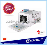 DW-3101A Ultrasound machine for pregnancy check