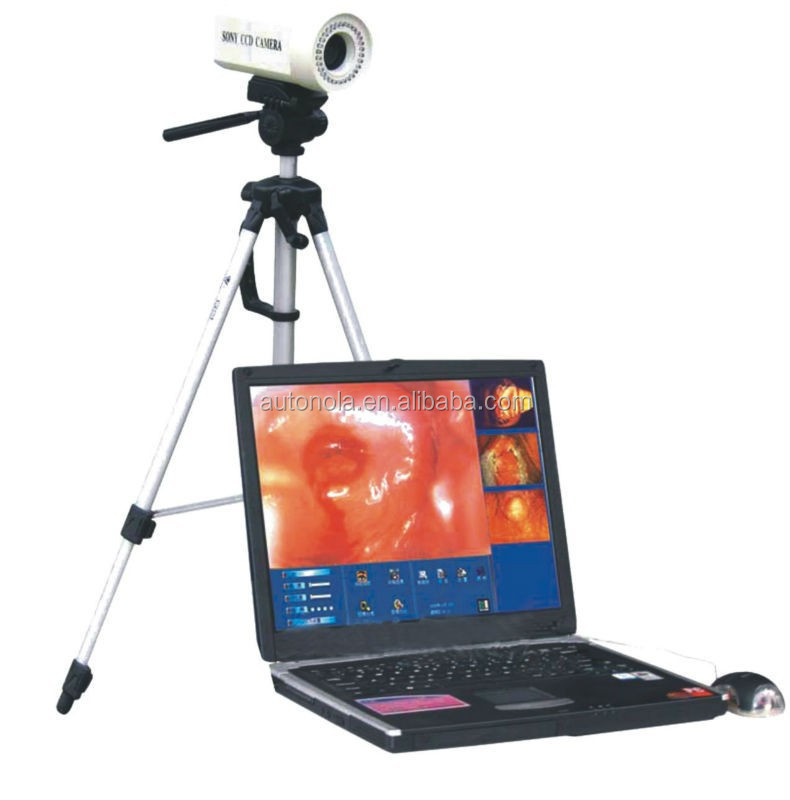Portable Digital Colposcope image forming system
