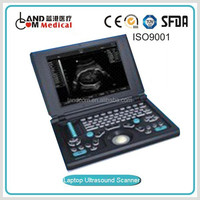 Portable Laptop ultrasound scanner with CE