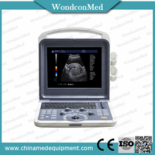 Full Digital B Model Portable Laptop Ultrasound Scanner