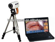 ccd video camera digital electronic colposcope with ce