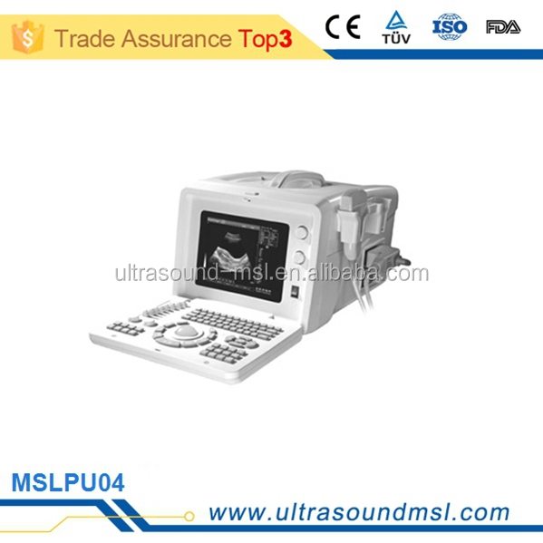personal ultrasound machine for pregnancy