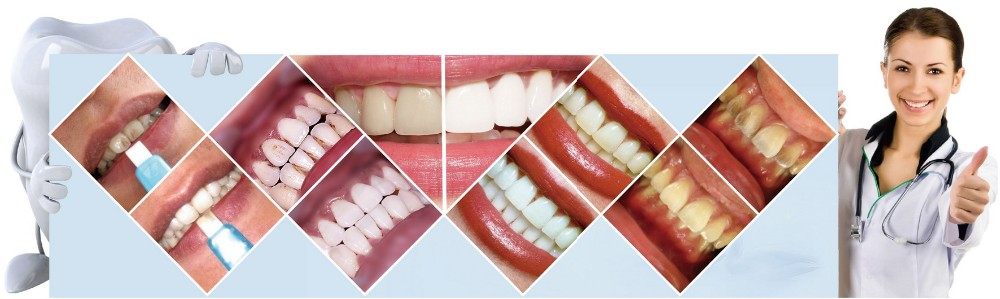 New Products 2020 Innovative Products China Dental Clinic Supplies Teeth Whitening Private Label Wholesale for dentist