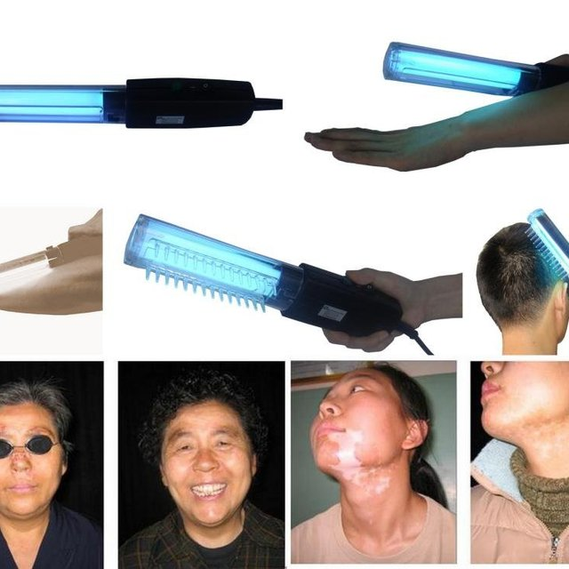 Anti-vitiligo uv therapy Medical handheld Lamp for Psoriasis,Vitiligo,Eczema,Atopic Dermatitis