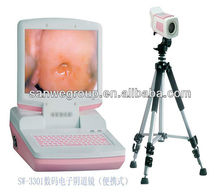 SW-3303 Digital Electronic Colposcope/Gynecology Apparatus with CE mark