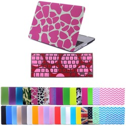 "Hard Plastic Snap on Case Shell+Keyboard Cover for Macbook Pro 13/15"" Air 11/13"""