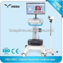 Medical Colposcope Machine with