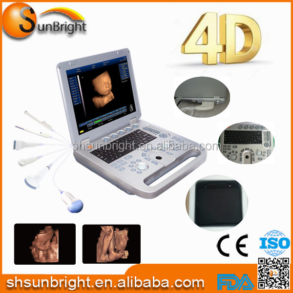 Pregnant women laptop personal B ultrasound convex array probe / hospital Physical Test