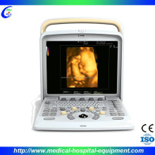 Ultrasound Scanner Price in Guangzhou