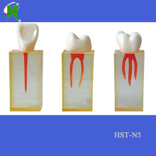 dental canal model with crown with colored pulpal wall