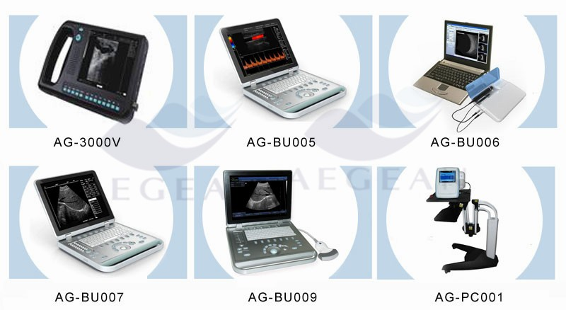 AG-BU005 approved 15 inch large screen 4D color doppler portable ultrasound
