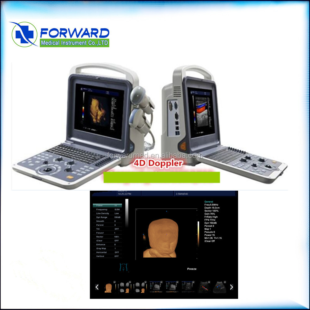 Portable Color Ultrasound Machine&Color Doppler Two Probes