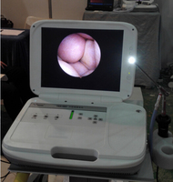 Medical video otoscope veterinary ent endoscope
