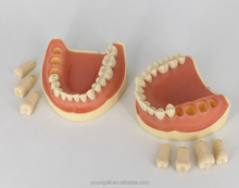 Removable dental model 500 teeth model Dental Model