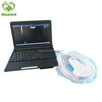 MY-A007 Laptop Ultrasound Scanner With Ultrasound Probe