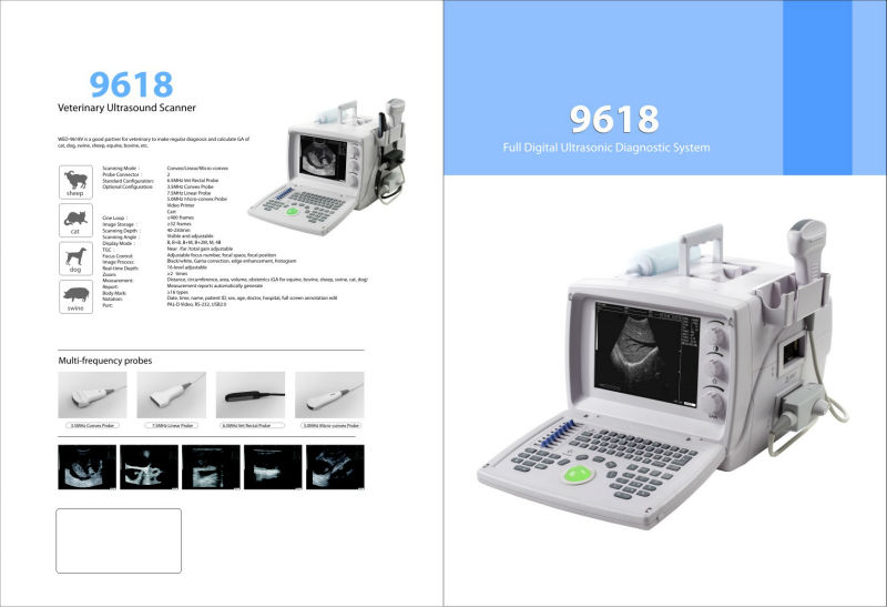 DIGITAL GBWE ULTRASOUND MACHINE