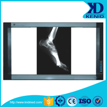 Medical X Ray Film Viewer, Double Film Viewer with Optically Controlled Technology