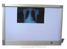 High quality medical negatoscope, x ray film viewer