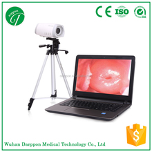 Portable laptop digital video electronic colposcope/colposcopy 9800