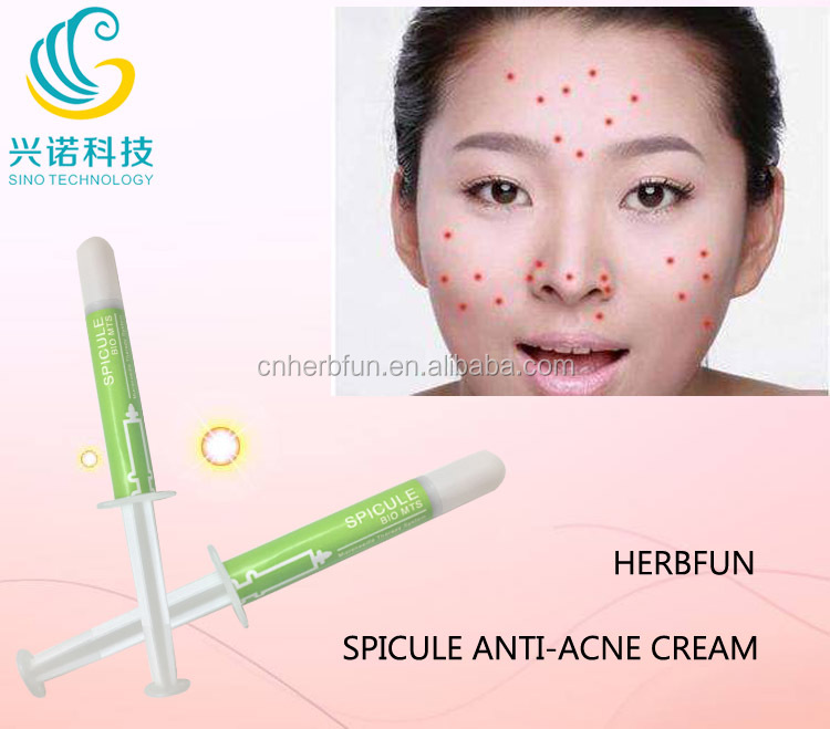 Top selling spongilla spicule anti acne pimple face cream chinese whitening cream