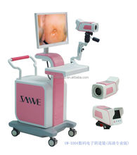 SW3304 Optical Colposcope/digital colposcope/medical instrument