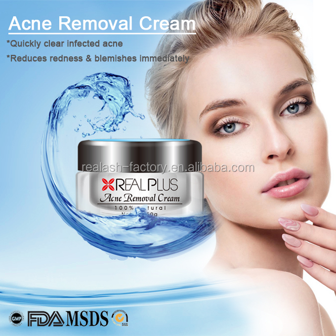OEM Service Organic Cosmetics Fast Response Acne Away REAL PLUS Pimples Treatment Cream
