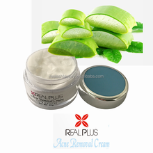 Skin care whitening facial cream be special cream for acne