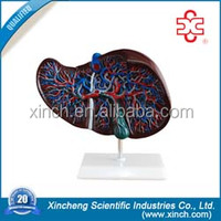 Enlarged Size Liver Model