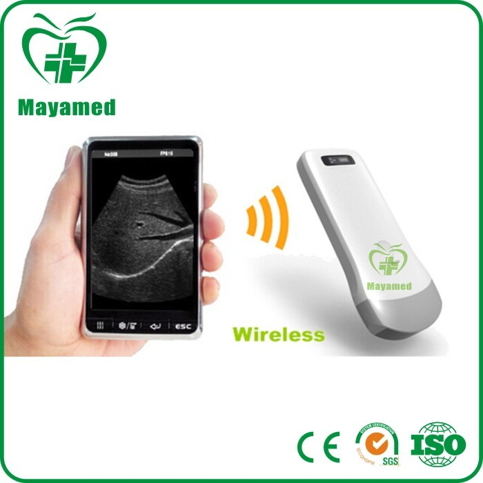 Hot sale mini wireless ultraound device for working on iphone/ipad ultrasound probe
