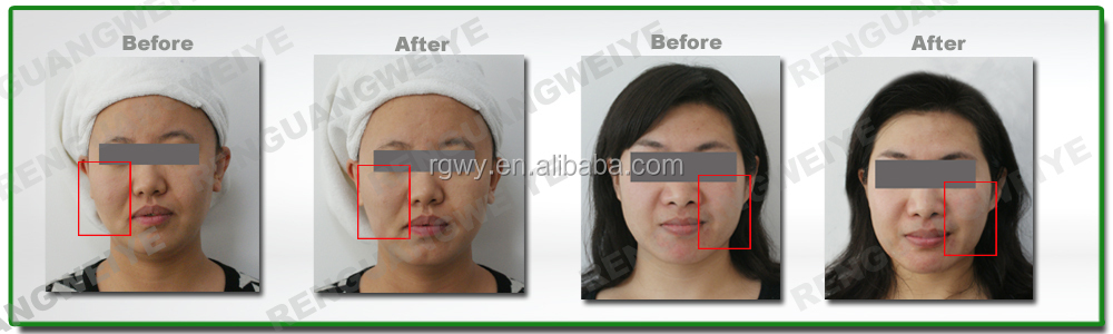 High Intensity Focused Ultrasound wrinkle removal Face lift hifu beauty equipment