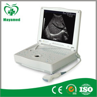MY-A004 Laptop/ notebook digital ultrasound machine/ ultrasonic scanner