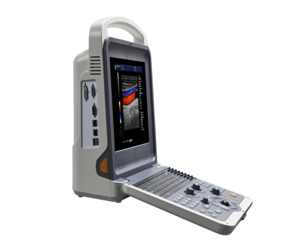 Hot Sale Color Doppler Ultrasound