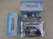 High quality rapid test device blood group reagent hepatitis e virus elisa test kits