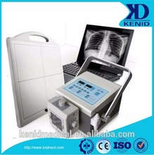 Digital X ray Medical X-ray Equipments & Accessories Properties radiography digital computed