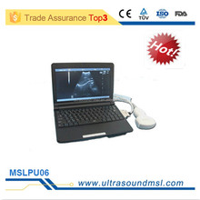 Laptop/ notebook digital ultrasound machine/ ultrasonic scanner with 2years warranty for slae (MSLPU06F)