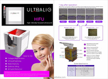 S92 OEM/ODM Available Hifu Ultrasound Approval In US Without Hifu Side Effects