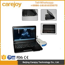CE approved Laptop Ultrasound Machine external 3D with 3.5Mhz Convex probe optional Sony UP898 MD video thermal recorder