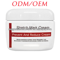Stretch Mark Cream SKin Care Products